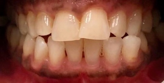In office zoom-whitening Before