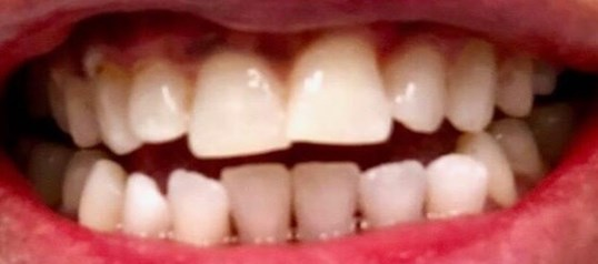 In office zoom-whitening After