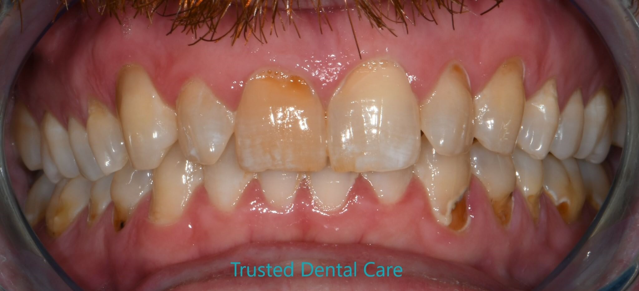 Smile makeover due to erosion Before