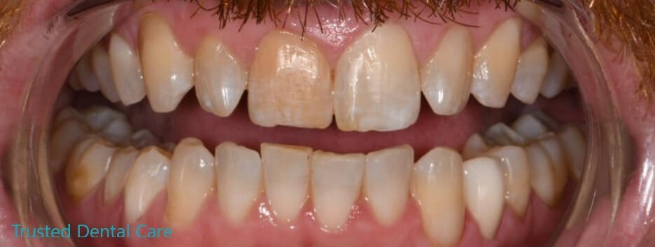 Smile makeover due to erosion After