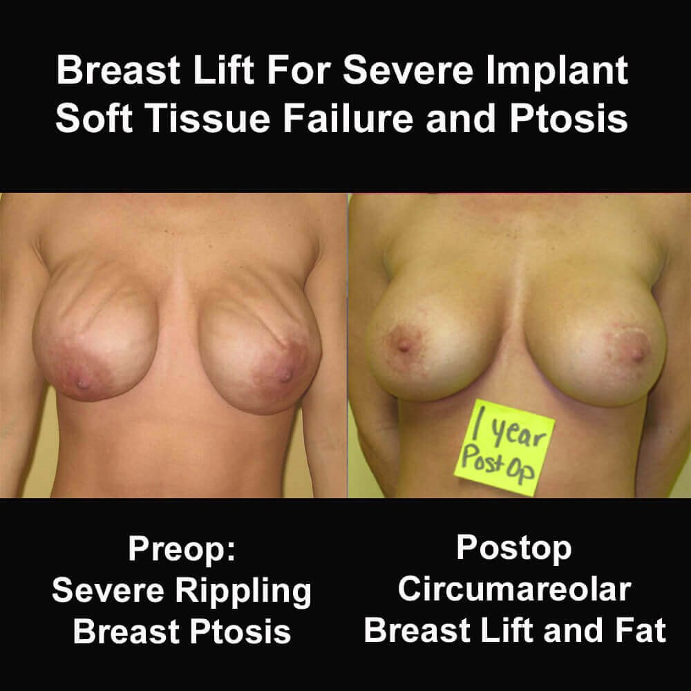 Breast Lift for Breast Ptosis Before