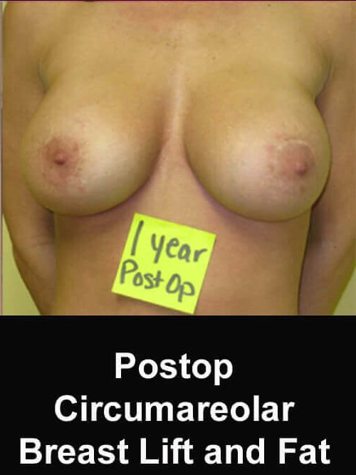Breast Lift for Breast Ptosis After