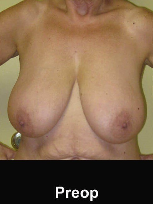 60 year old Breast Lift Before