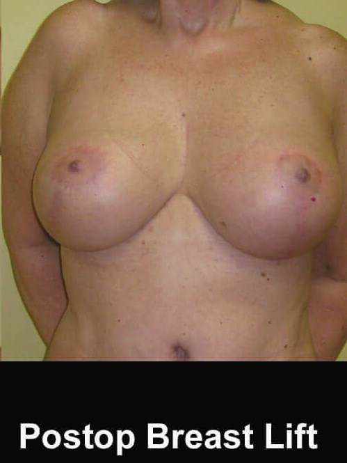 60 year old Breast Lift After