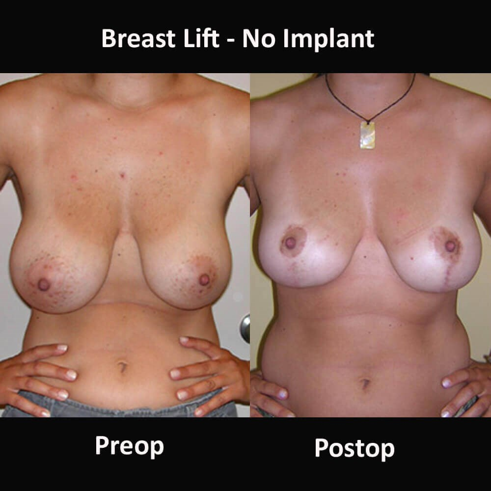 Women with Breast Lift Before