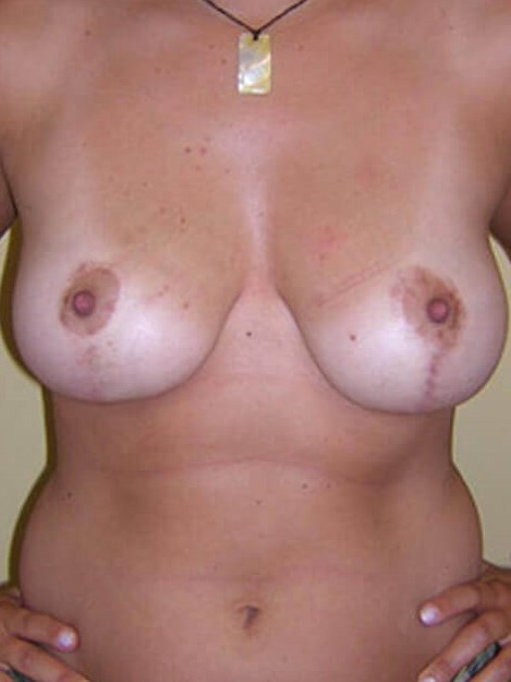 Women with Breast Lift After