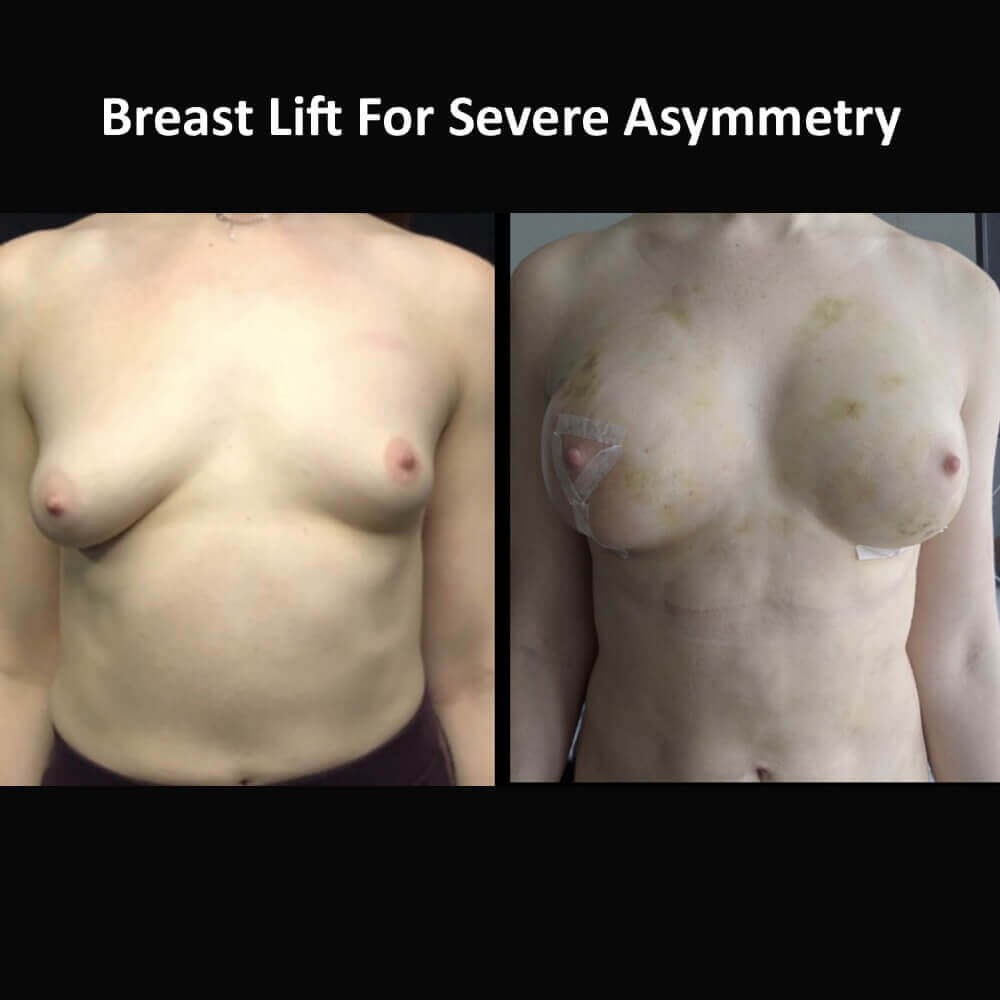 Breast Lift and Fat Graft Before