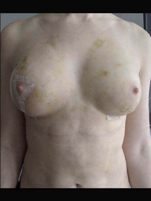 Breast Lift and Fat Graft After