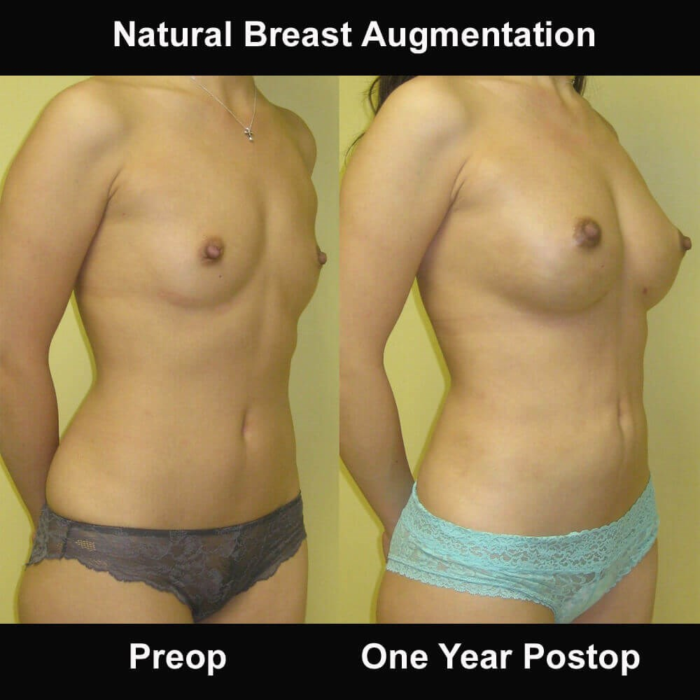 Breast Fat Transfer Before and After