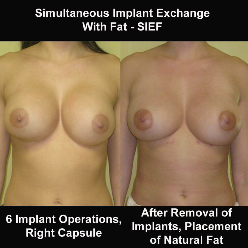 Breast Revision Before and After