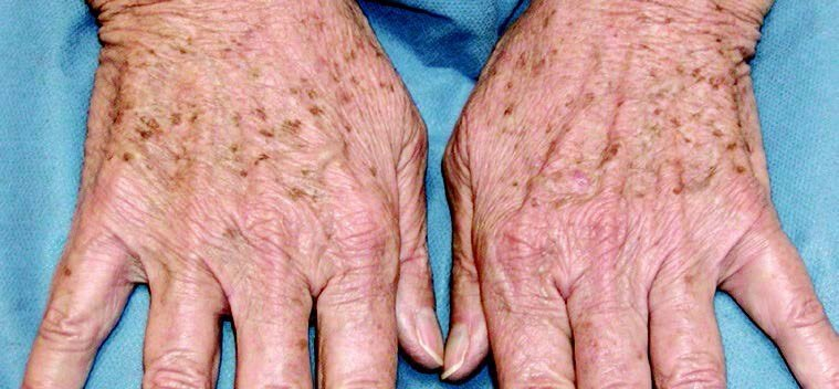 Hand Rejuvenation Results Before