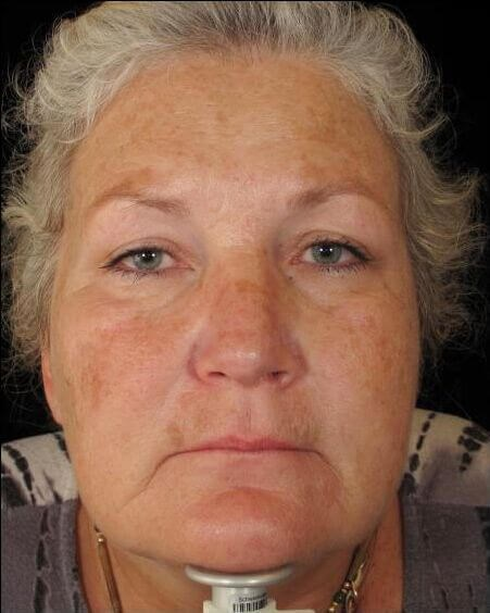 Halo - Hybrid Fractional Laser Before