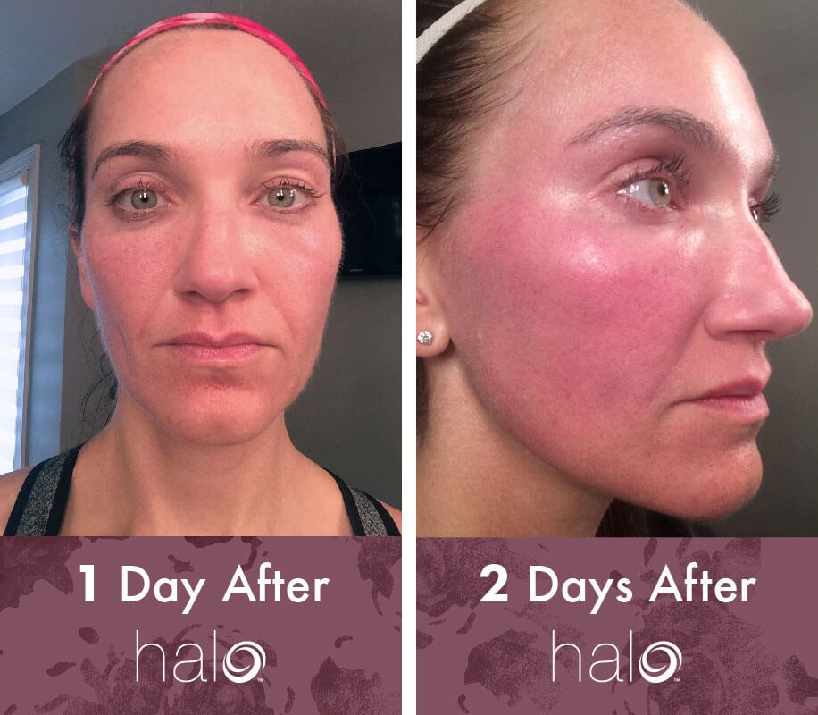 3f0af81a On days three and four, I continued to have noticeable MENDS, but my  swelling decreased. At no time was I uncomfortable, but my face did feel  dry – even ...