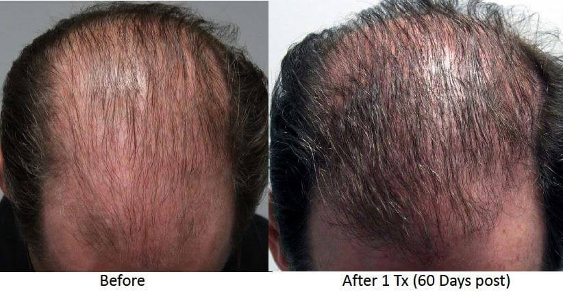 Hair Restoration B&A