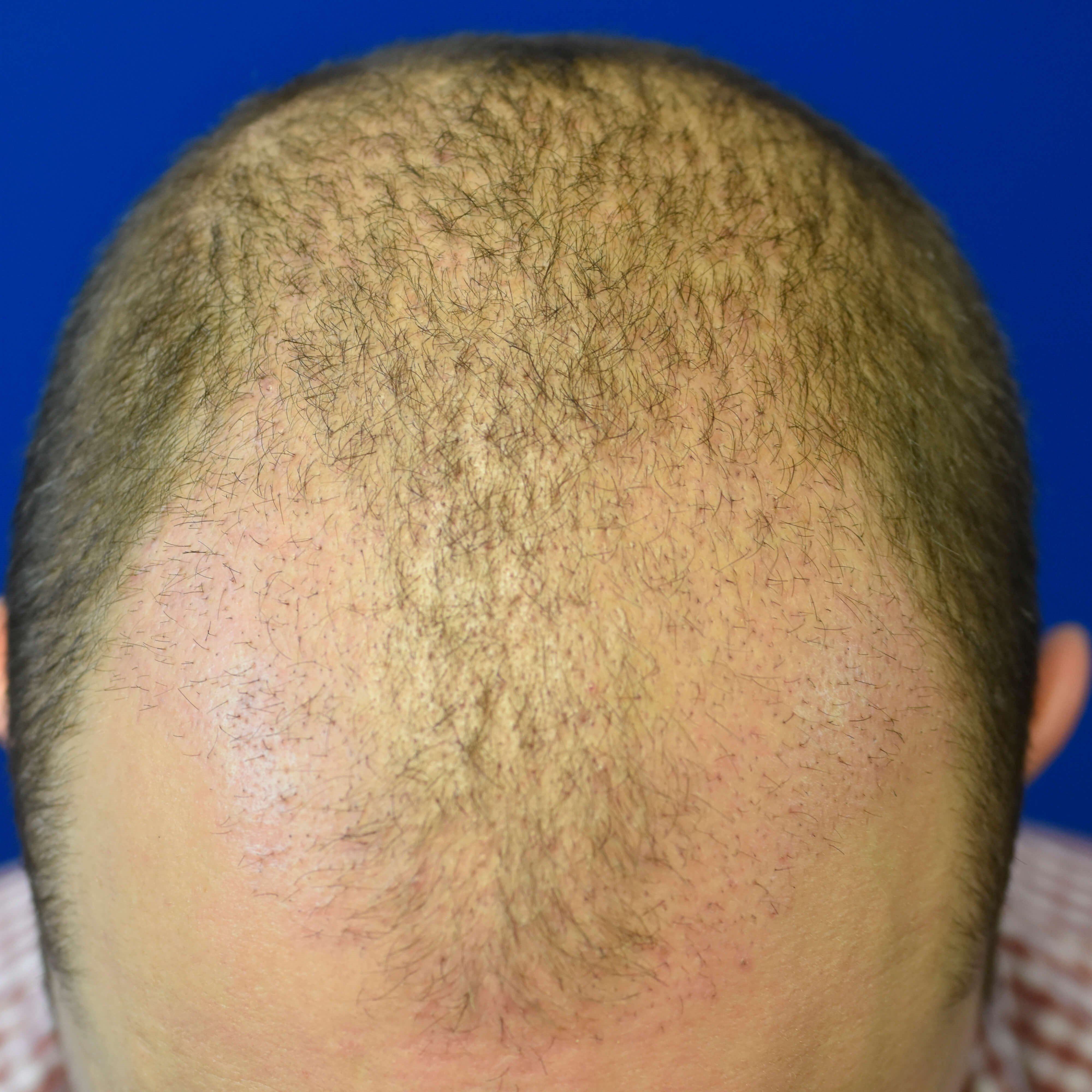 ARTAS Hair Transplant Oklahoma Before