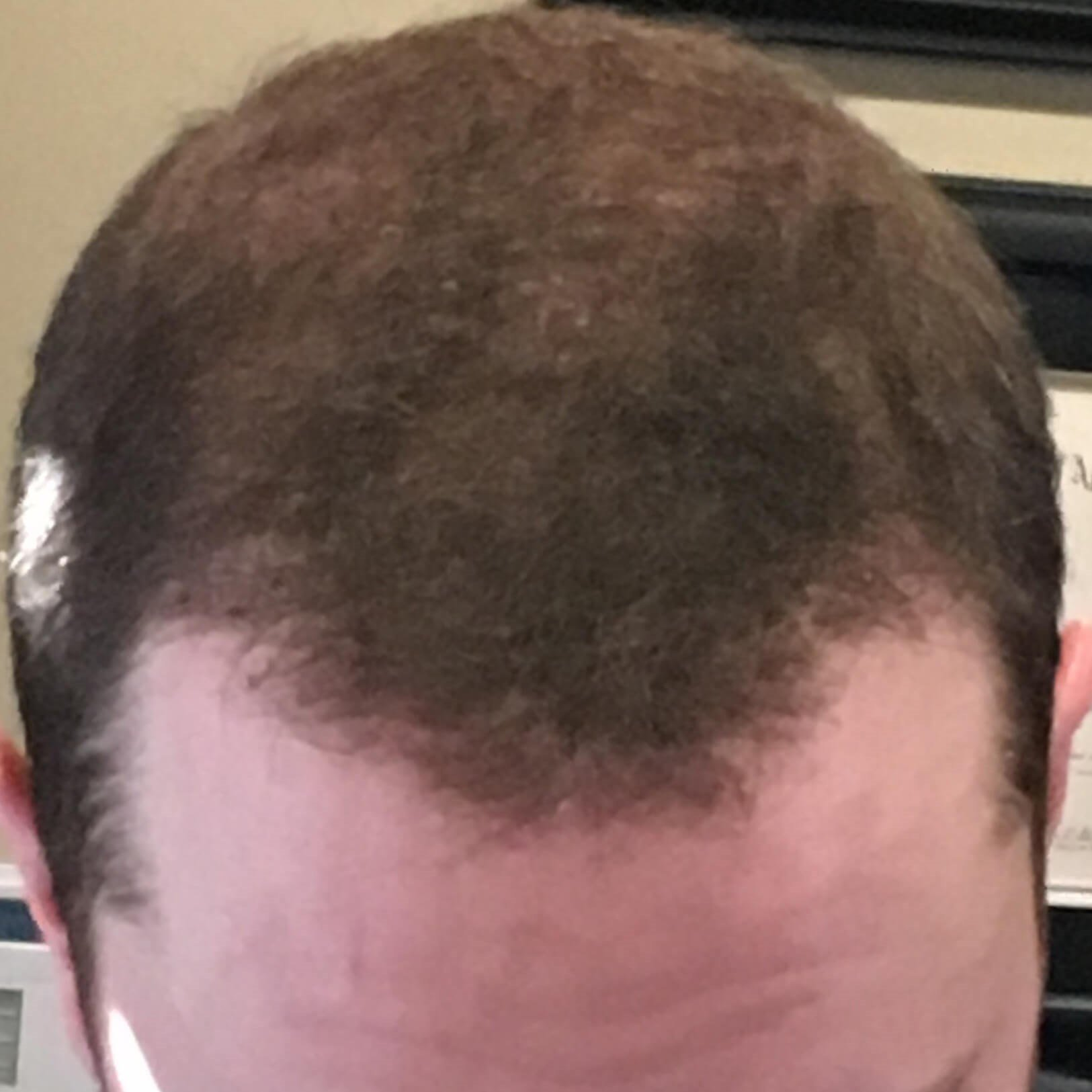 ARTAS Hair Transplant Oklahoma After