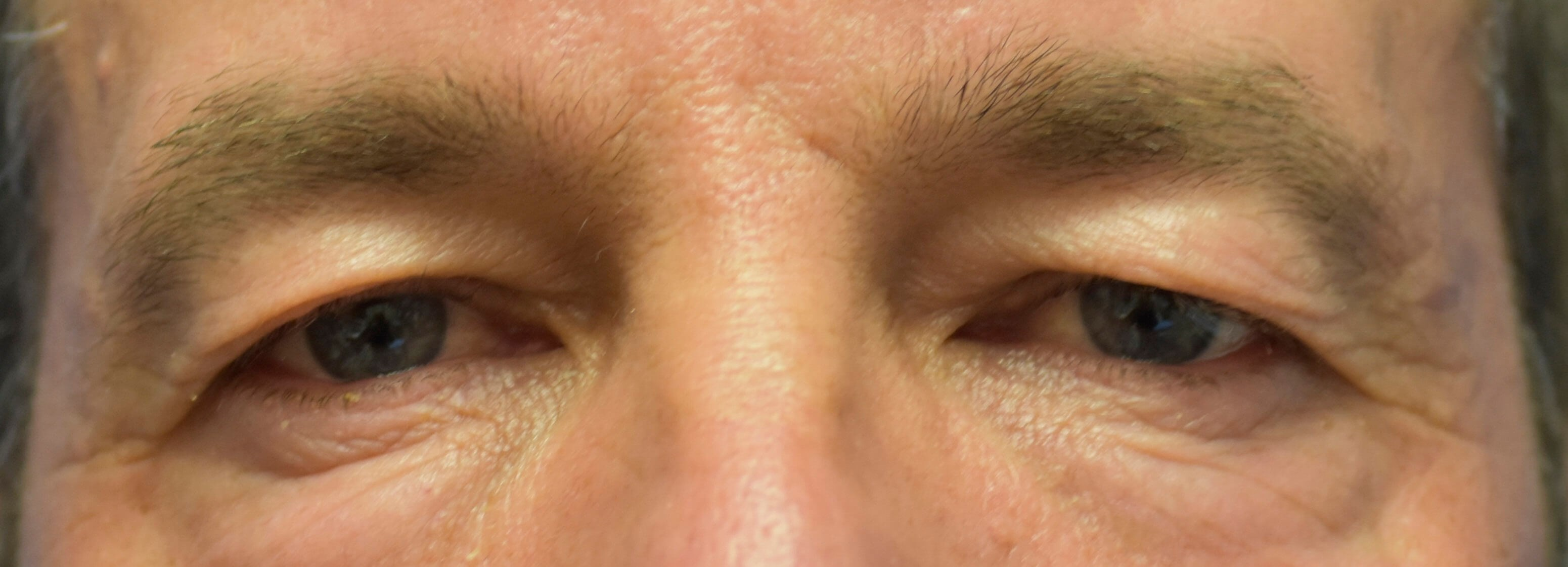 Eyelid surgery Oklahoma Before