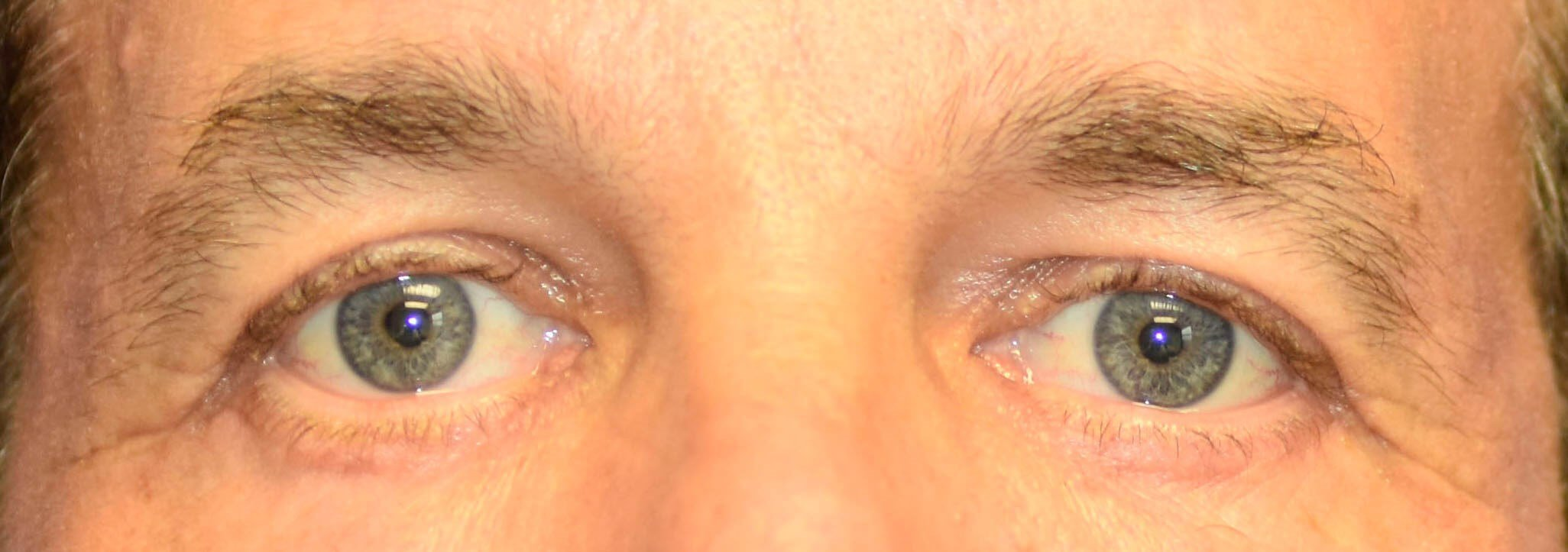 Eyelid surgery Oklahoma After