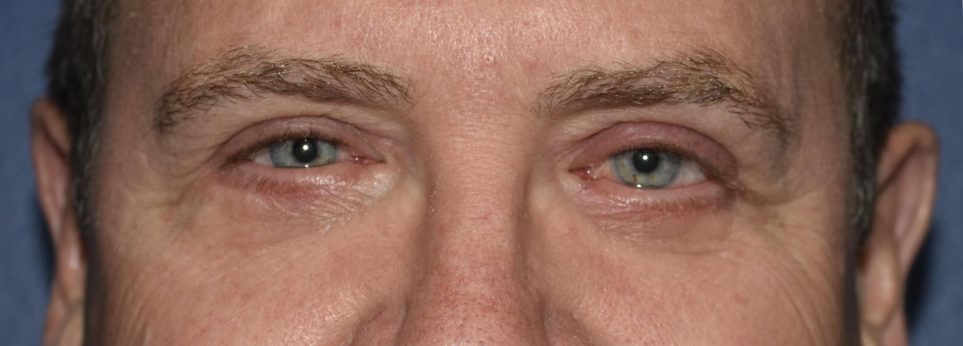 Eyelid Surgery 6 weeks after