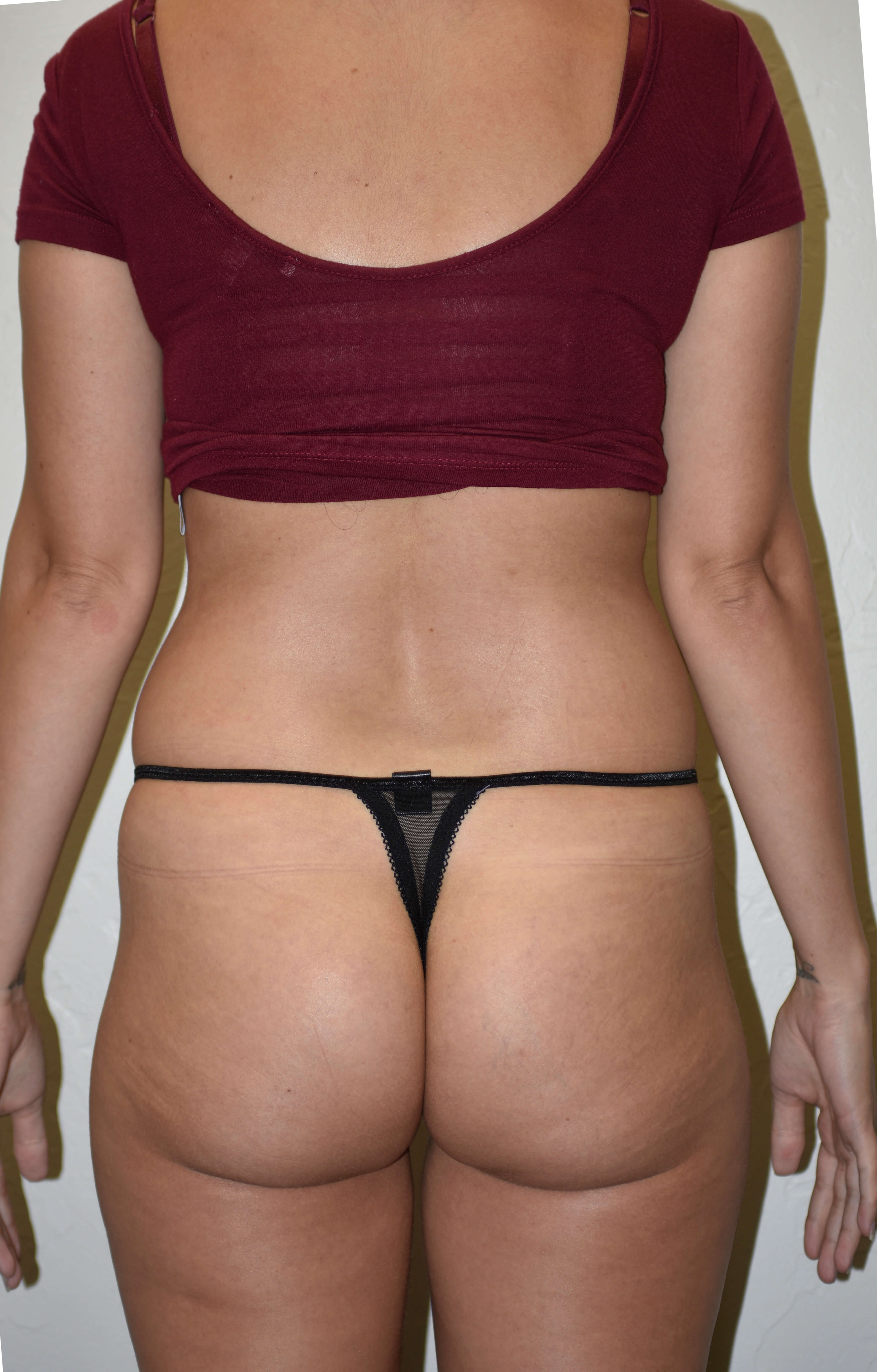 Buttock contouring Before