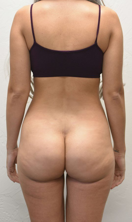 Buttock contouring After