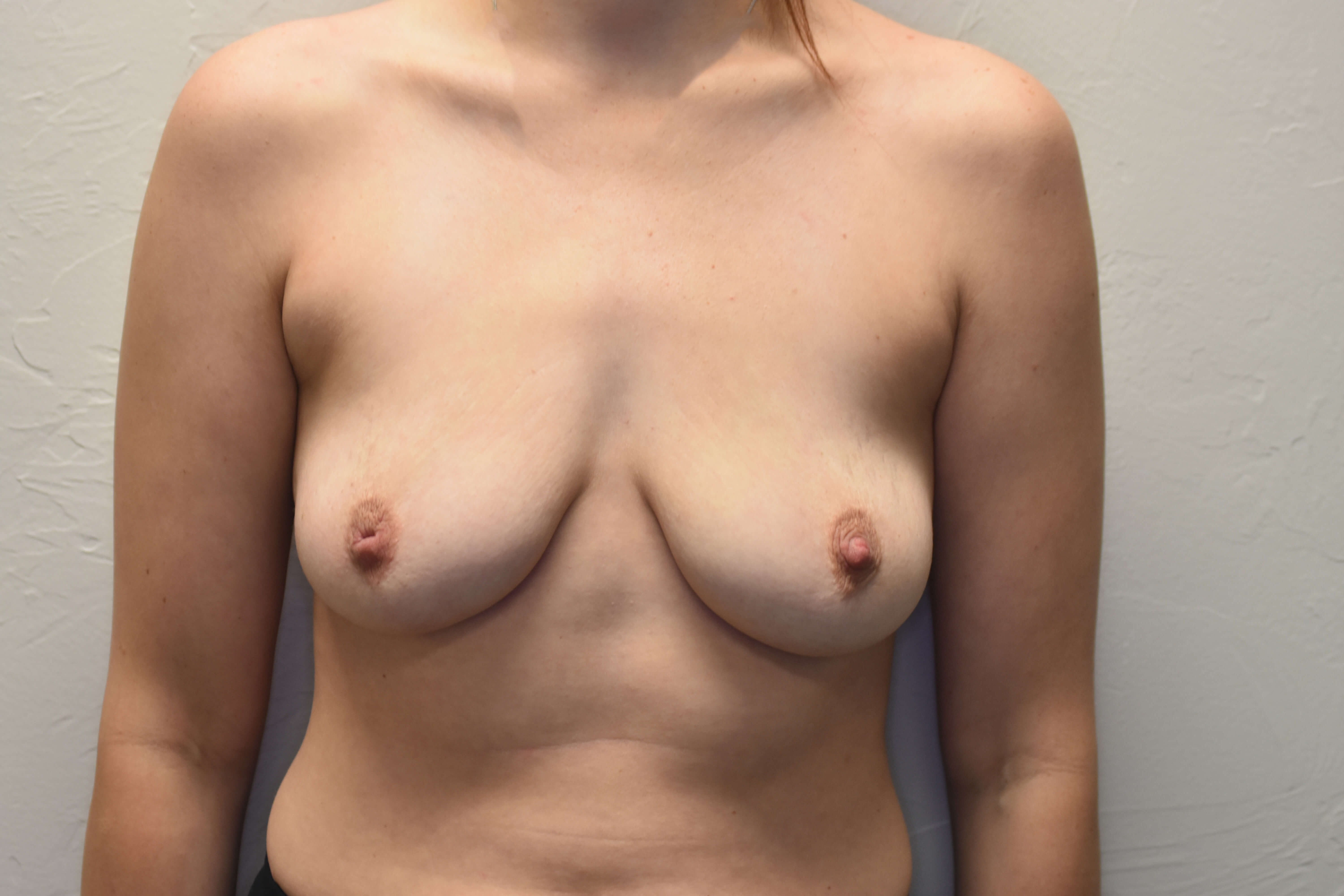 Breast Augmentation Oklahoma Before