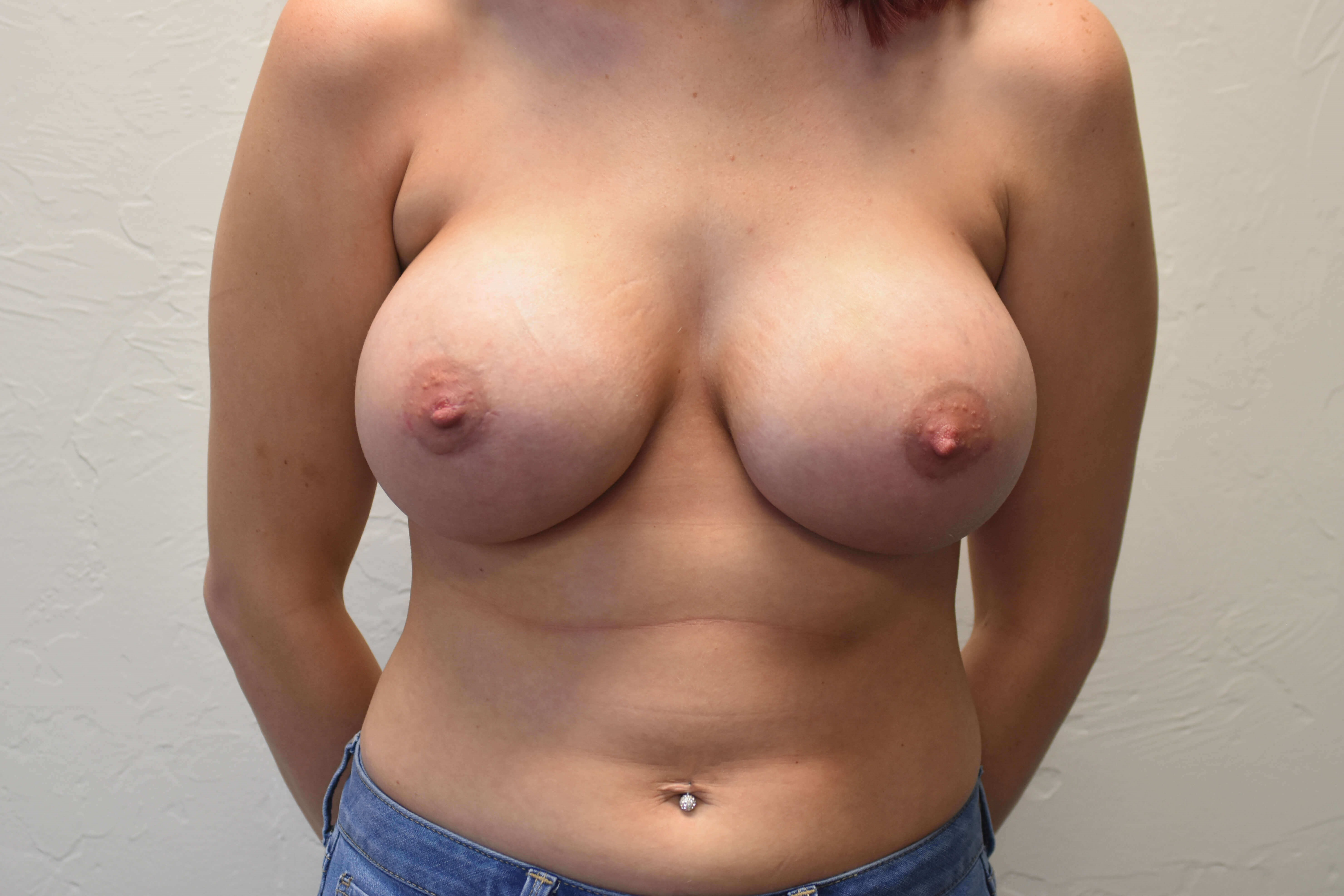 Breast Augmentation Oklahoma After