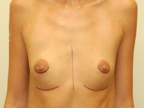 Breast Enlargement Front View Before Breast Augmentation
