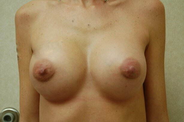 Breast Enlargement Front View After Breast Augmentation
