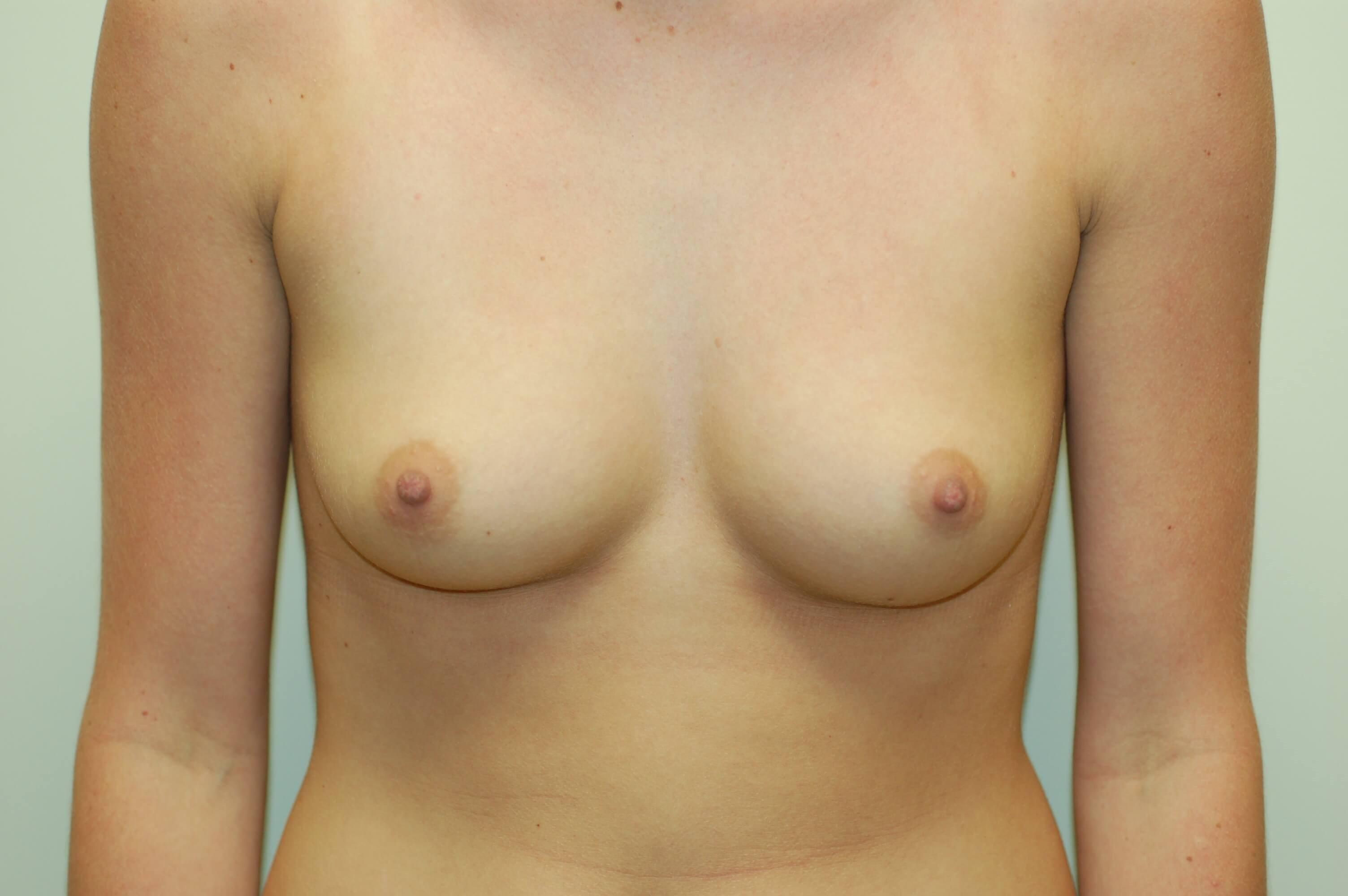 Front View Breast Enlargement Front Before