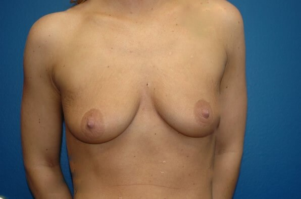 Breast Augmentation Front View Front View Before