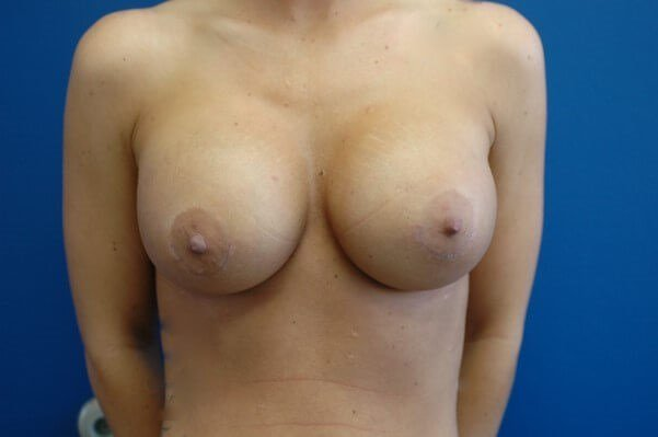 Breast Augmentation Front View Front View After