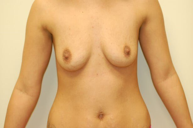 Breast Enlargement Front View Front View Before