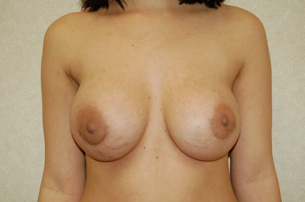 Breast Enlargement Front View Front View After
