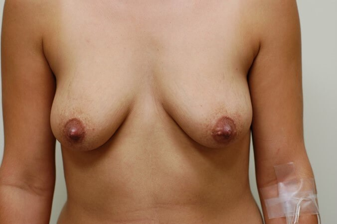 Breast Enlargement Before