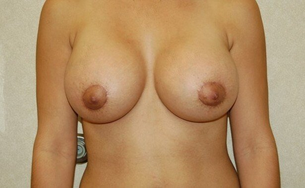 Breast Enlargement After