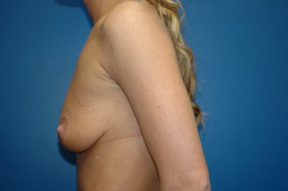 Breast Augmentation Side View Side View Before