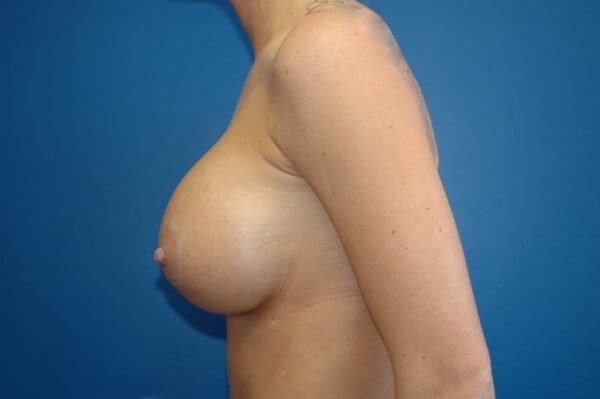 Breast Augmentation Side View Side View After