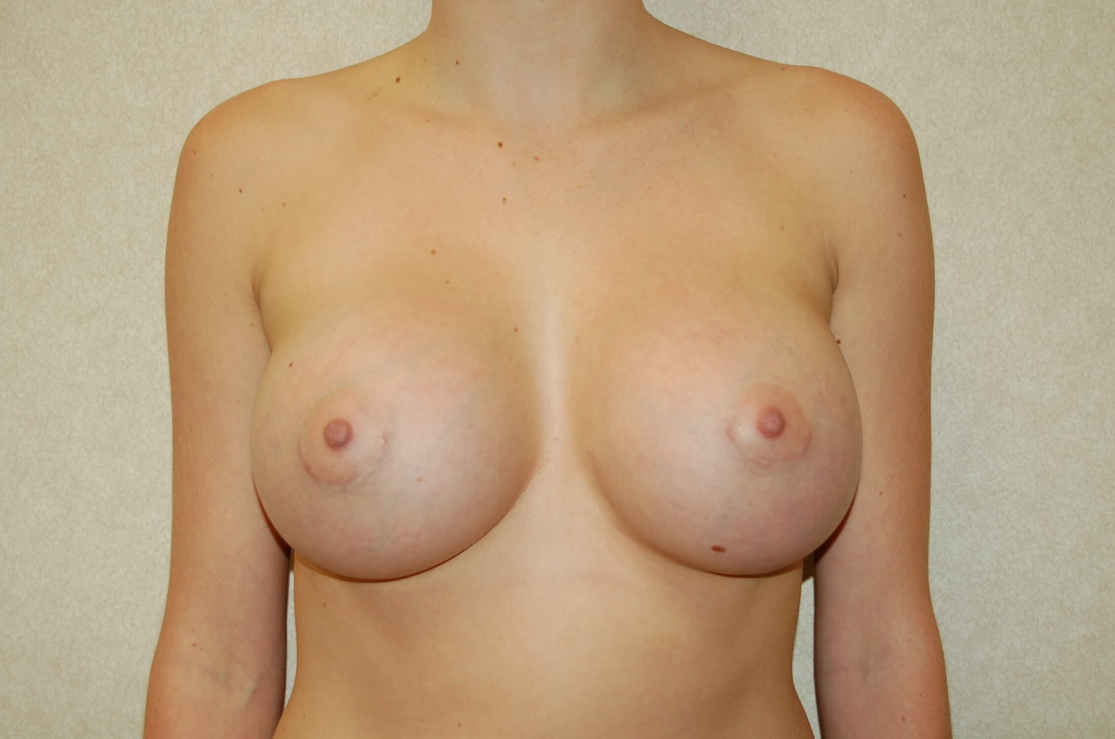 Front View Breast Enlargement Front After