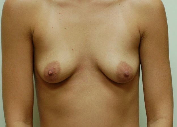 Breast Enhancement Front View Before