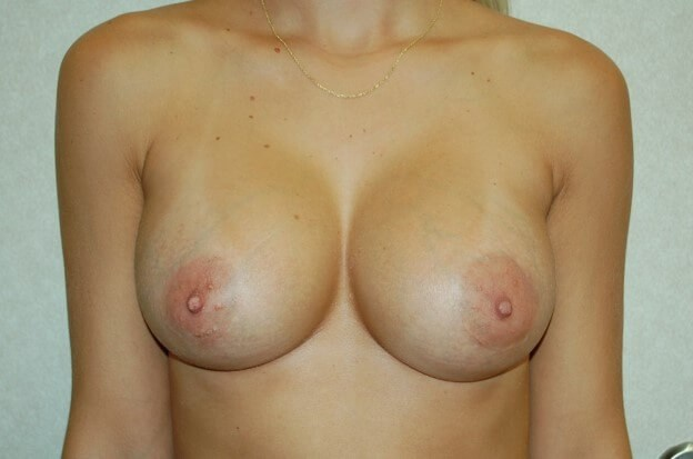 Breast Enhancement Front View After