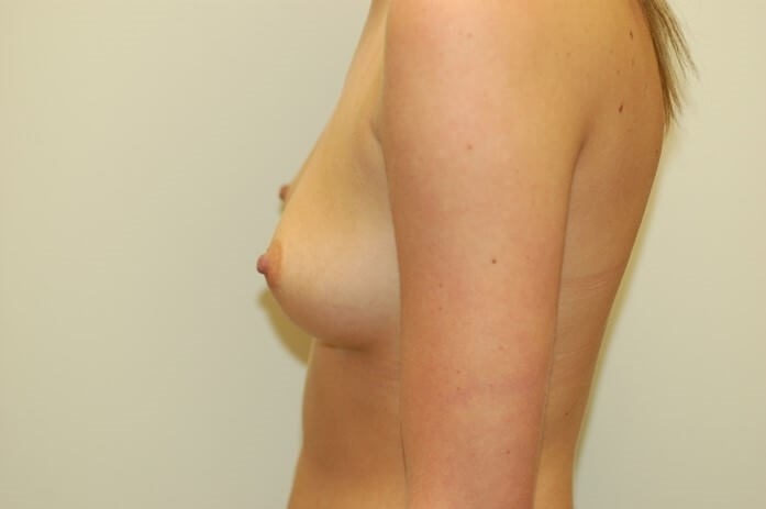 Side View Breast Enlargement Profile Before