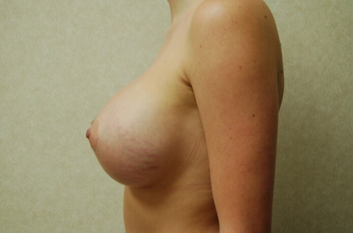Side View Breast Enlargement Profile After