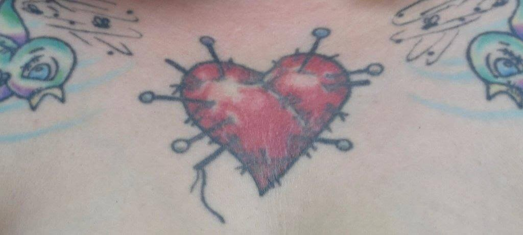 Laser Tattoo Removal Before