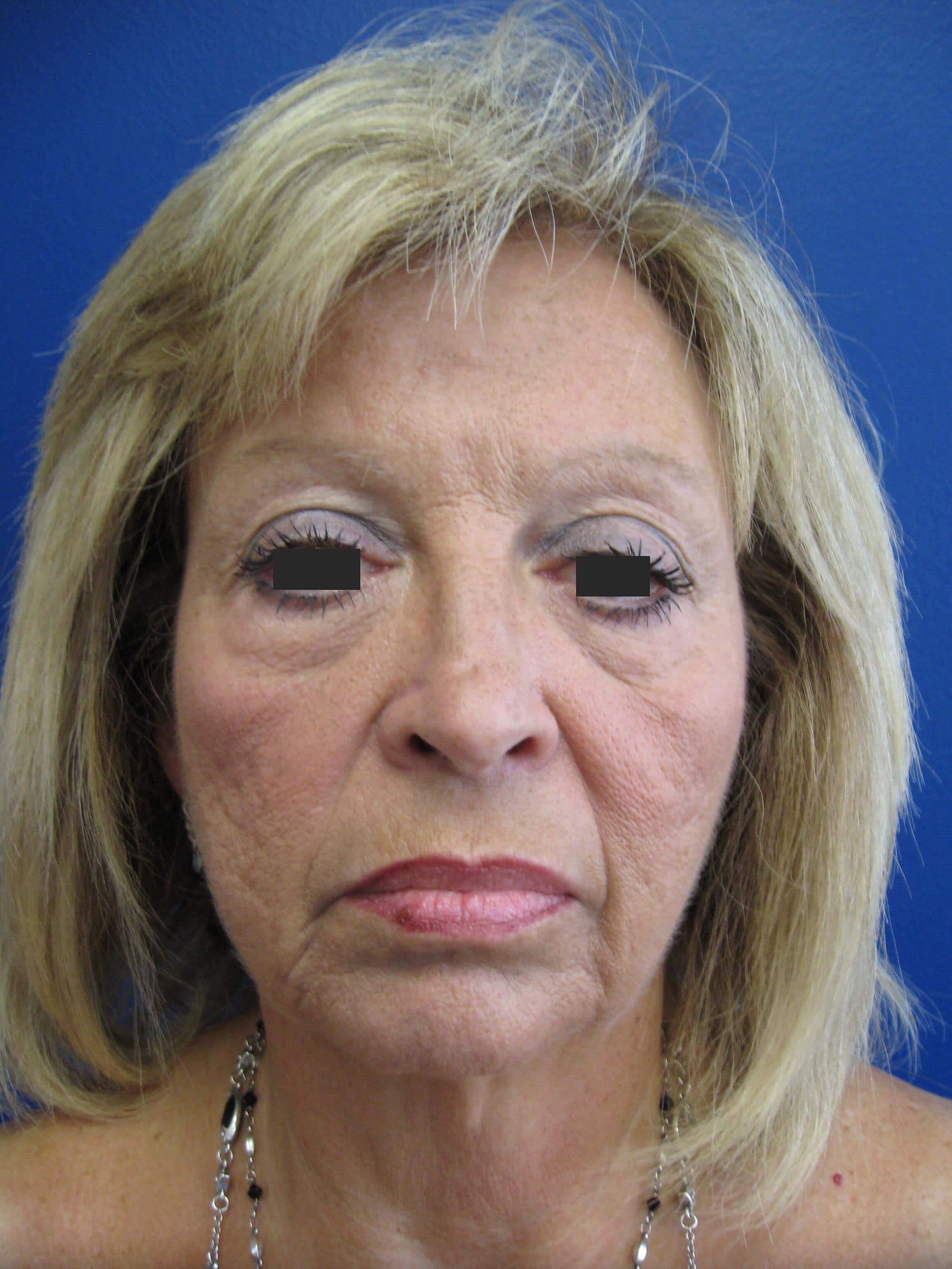 Facelift & Eyelid Surgery Before