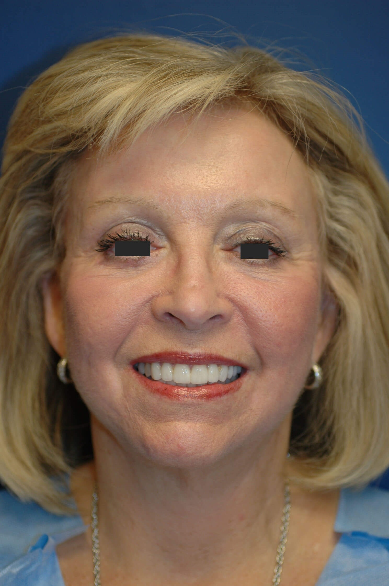 Facelift & Eyelid Surgery After