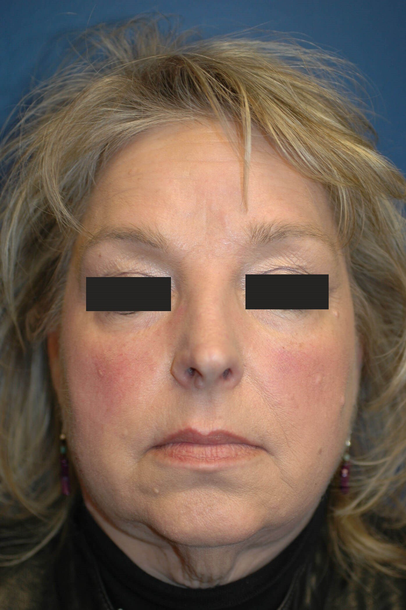 Front View, Facelift Patient Before Facelift