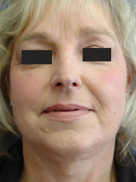 Front View, Facelift Patient After Facelift