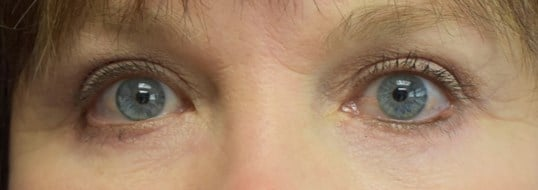 Before and After Eyelid Surger After