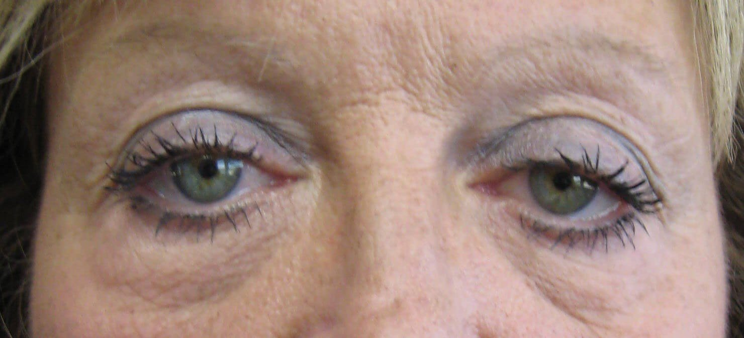 Eyelid Surgery Results Before